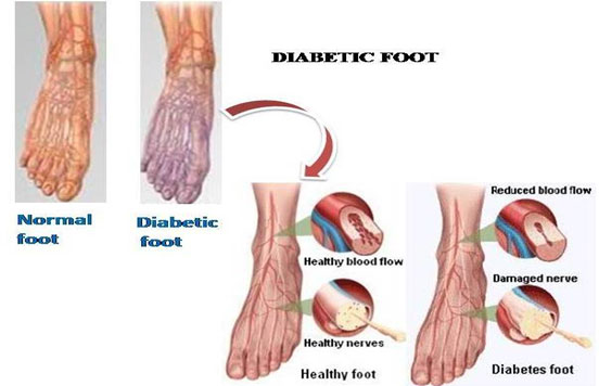 Diabetic Foot Color Changes
