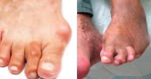 Foot Shapes with diabetic
