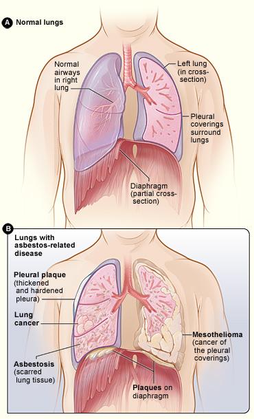 mesothelioma-Cancer