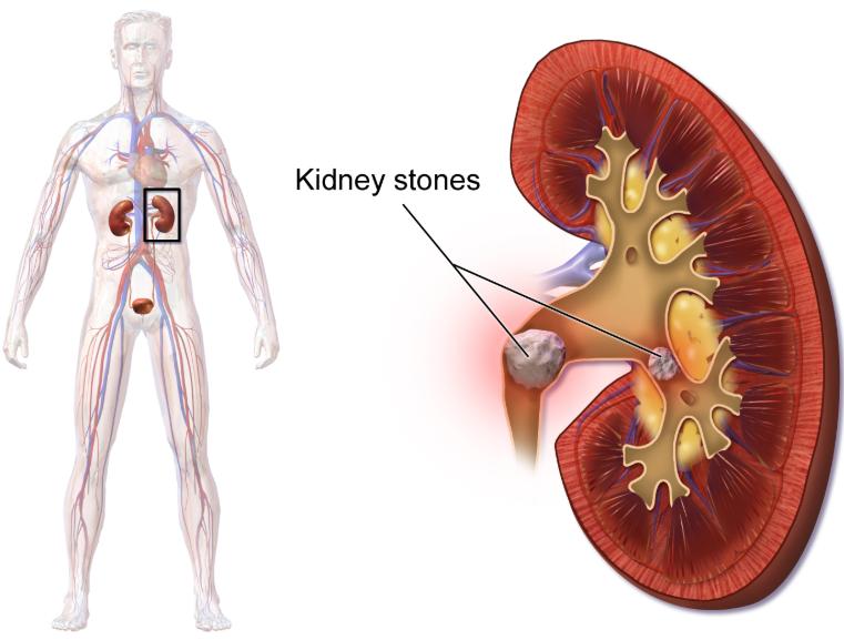 Kidney_stones_home_remedy
